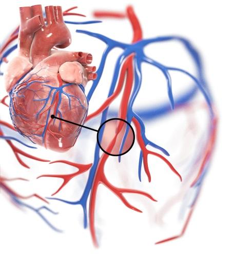 Verschlossenes Herzkranzgefäß
