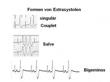 Extrasystolen1