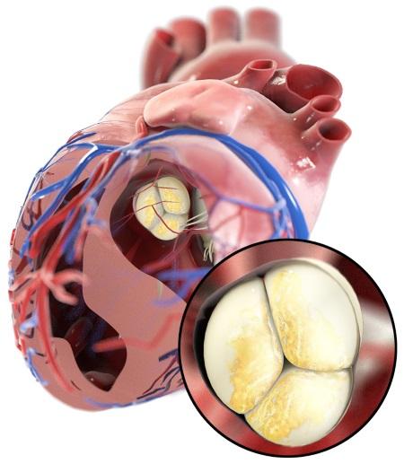 Darstellung einer Aortenklappenstenose am 3D-Modell des menschlichen Herzens