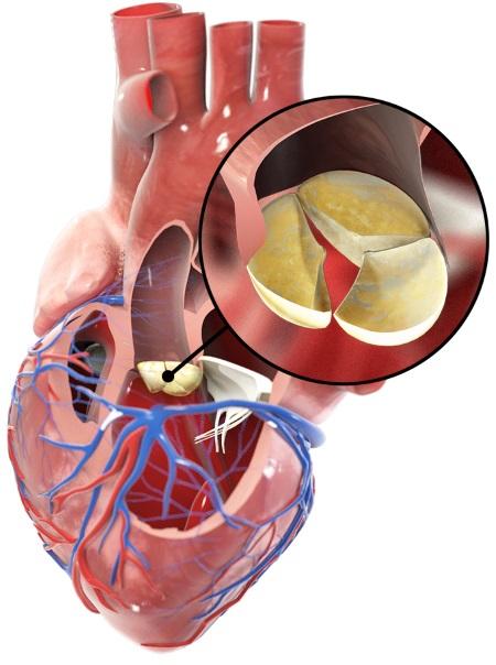 Mit dem Kardio-MRT kann ein Klappenvitium sichtbar gemacht werden