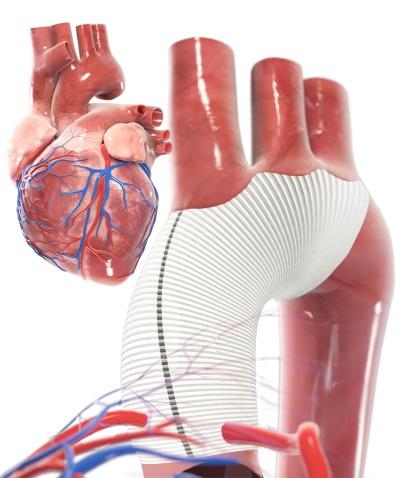 Aorta-Operation | Eingriff bei Aneurysma oder Dissektion